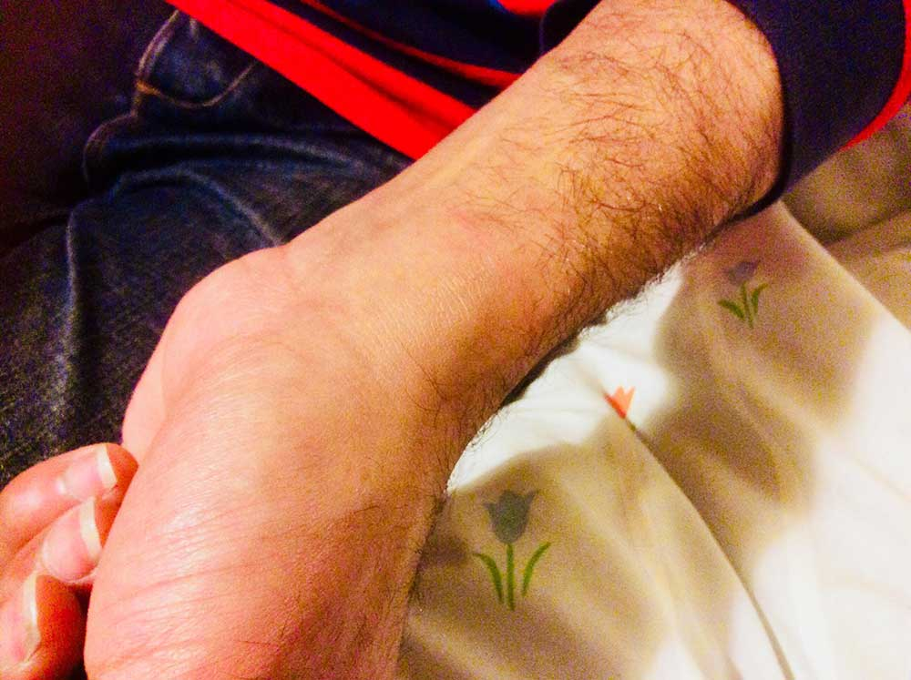 Abdurrahman Ezz - wrist injured by handcuffs
